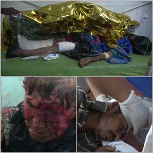 6300 بمباران با 8400 شهید در 4.5 سال جنگ علیه یمن